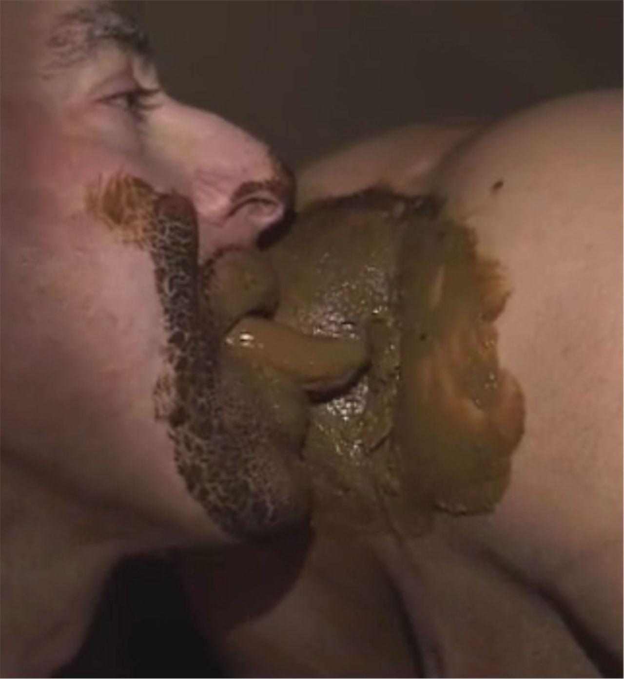 red itchy rash aournd anus