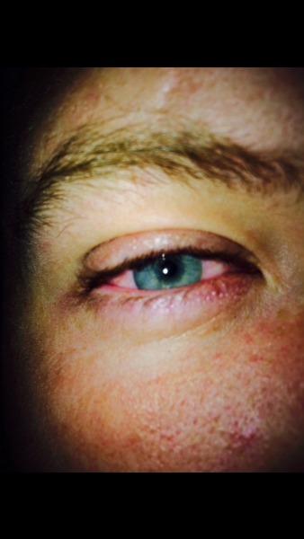 weed eyes | Tumblr