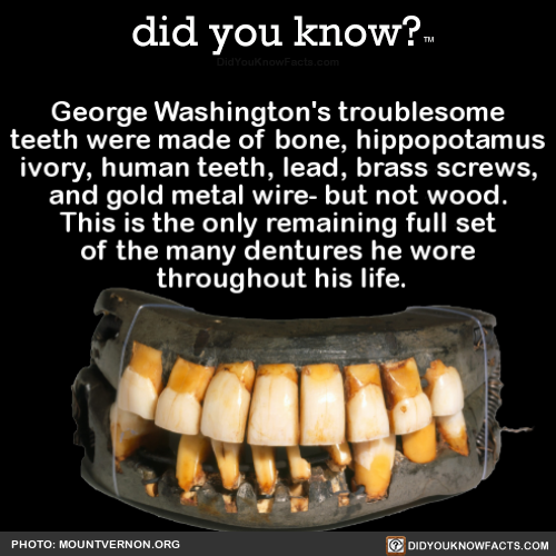 george-washingtons-troublesome-teeth-were-made-of