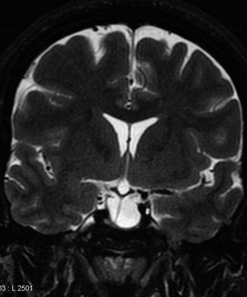 Radiology Signs • Infundibulum sign - helpful in ...